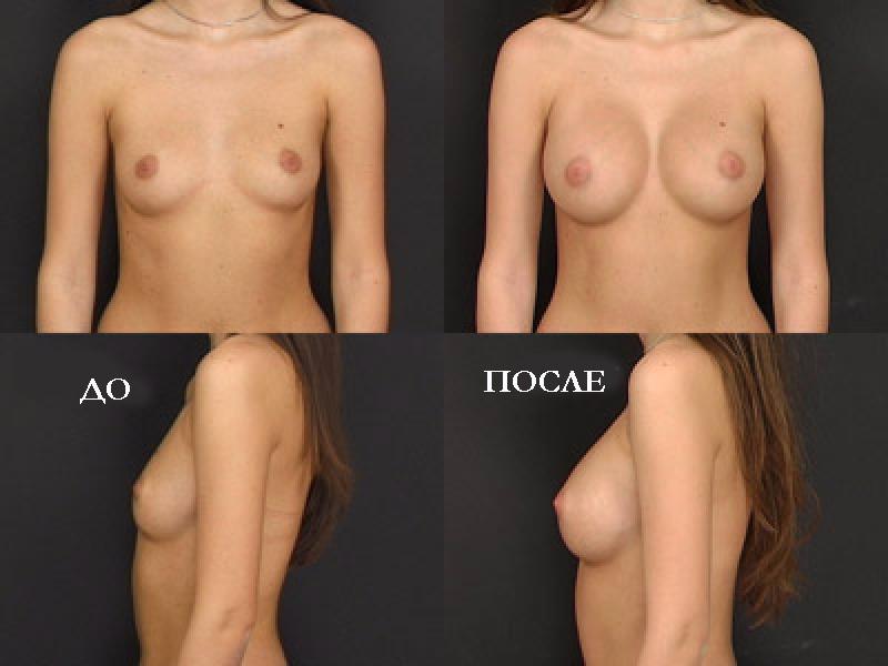 Анна семенович грудь силиконова