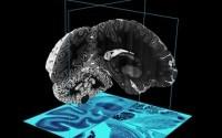 Создан самый большой и подробный путеводитель по человеческому мозгу
