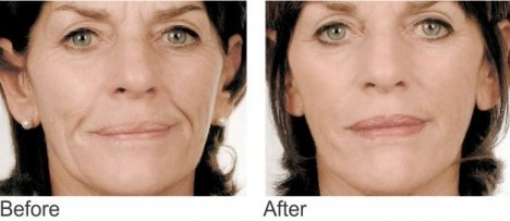 Mesotherapy-face-1