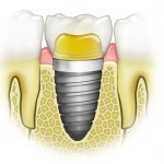 Нужна ли имплантация зубов?
