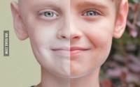 Как победить рак и остаться жить?