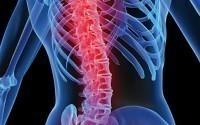 Лечение травм позвоночника