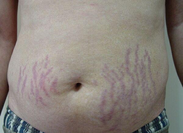Профилактика и лечение растяжек на теле