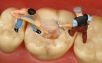 Стоматология в Подольске считает, что неправильный прикус нужно исправлять