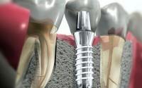 Что такое эстетическая реставрация зубов