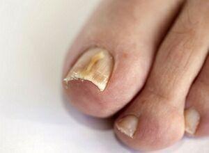 Как вылечить тонкие ногти на руках