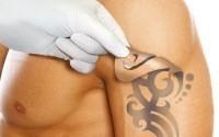 Современные способы сведения татуировок
