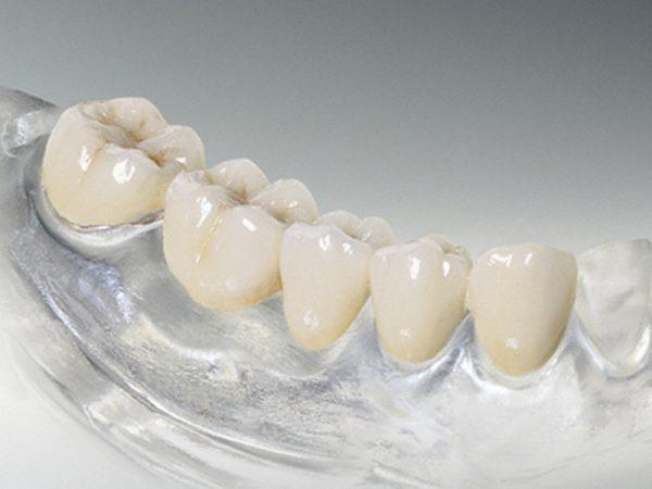 srok-sluzhby-silikonovyh-zubnyh-protezov