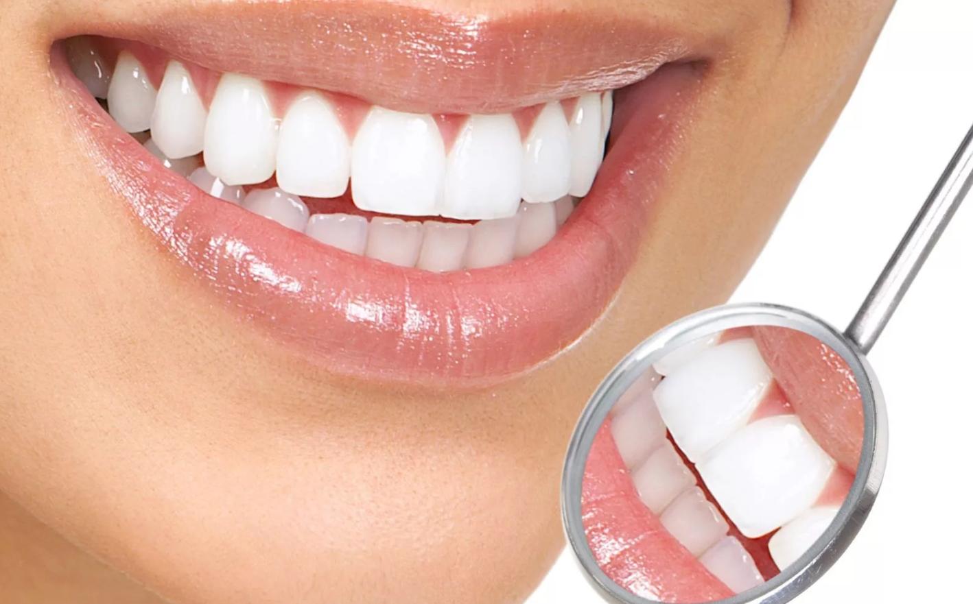 Виниры Luxneers: в чем преимущества установки без обточки зубов