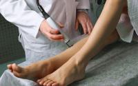 Лечение варикоза с помощью лазерных технологий