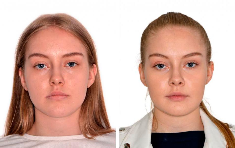 Челюстно-лицевая хирургия c отзывами ДО-ПОСЛЕ
