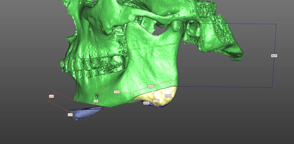 Челюстно-лицевая хирургия в картинках