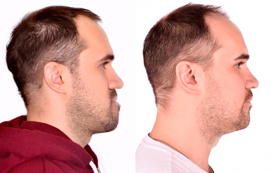 ДО-ПОСЛЕ челюстно лицевой операции
